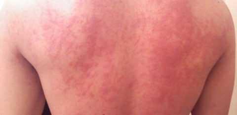 Крапивница у взрослых образуется, как аллергическая реакция на воздействие медицинских препаратов.
