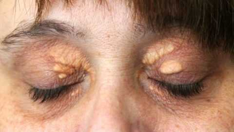 Ксантелазма (Xanthelasma) при СД