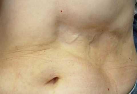 Липодистрофия в месте введения инсулина.