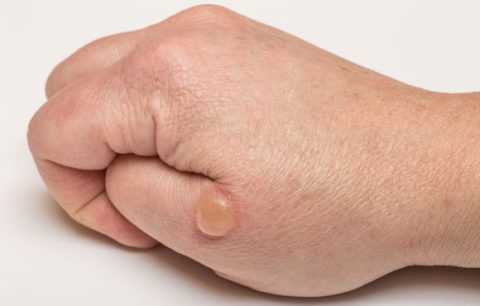 Лица, имеющие диабетическую невропатию, более подвержены риску появления диабетической пузырчатки.
