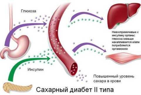 Механизм развития ИНСД