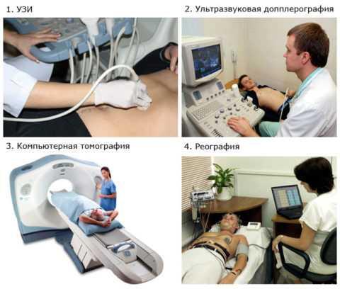 Методы диагностики варикозного расширения вен яичка и семенного канатика