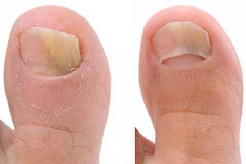 Микоз на ногтях – довольно частое явление при сахарном диабете.