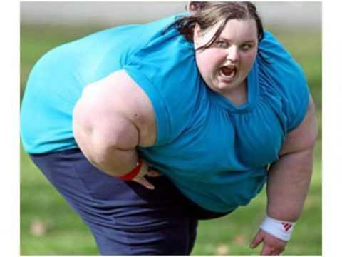 Морбидное ожирение у женщин