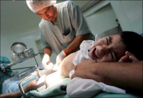 Мужчины, которым в раннем детстве провели обрезание, менее подвержены риску развития диабетического баланопостита.