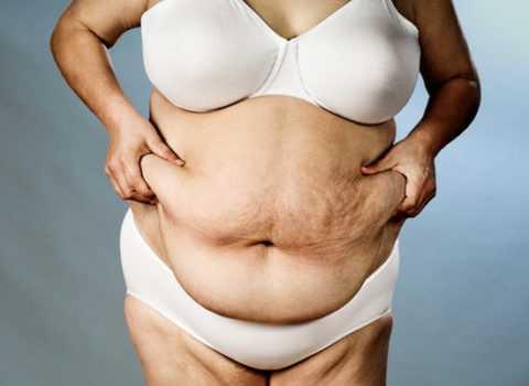 На этом фото видно нежелательное ожирение (именно несоблюдение диеты для диабетиков может привести к таким последствиям).