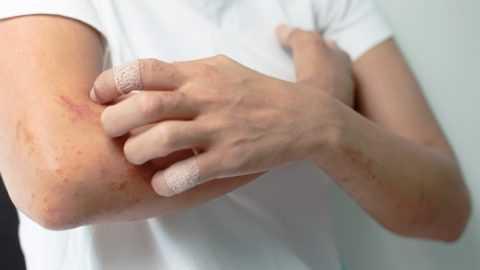 На инсулины, производимые искусственным путем, может появиться аллергическая реакция.
