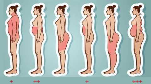 На риск развития СД2 и его течение влияют не столько лишние кг жира, сколько область их скопления
