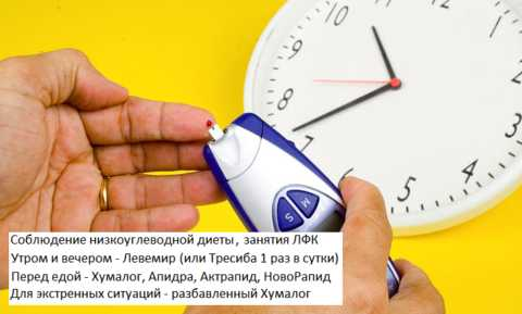 Наиболее эффективная схема контроля глюкозы в плазме крови при СД1