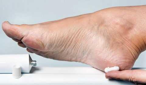 Необходимость проведения регулярных процедур по уходу за ногами.