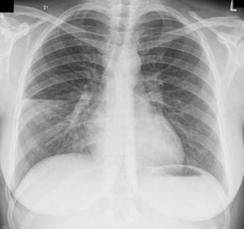 Нередко пневмония является тем провоцирующим фактором для осложнения течения СД.