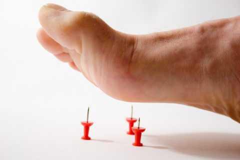 Невропатия — распространенное осложнение сахарного диабета