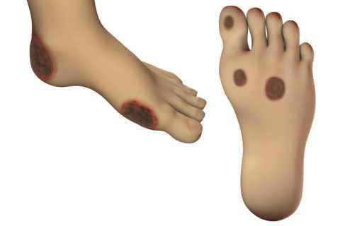 Нейропатия ступней
