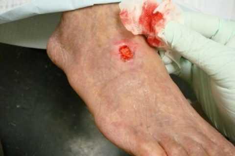 Незаживающие раны у диабетиков в основном образуются на ногах и стопах, такое явление получило название диабетическая стопа.