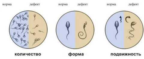 Нормальное и дефектное движение сперматозоидов