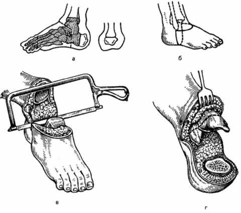 Операция по Пирогову. После заживления больной может обходиться без протеза