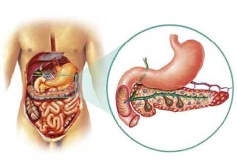 Панкреатит при сахарном диабете требует особого подхода в лечении.