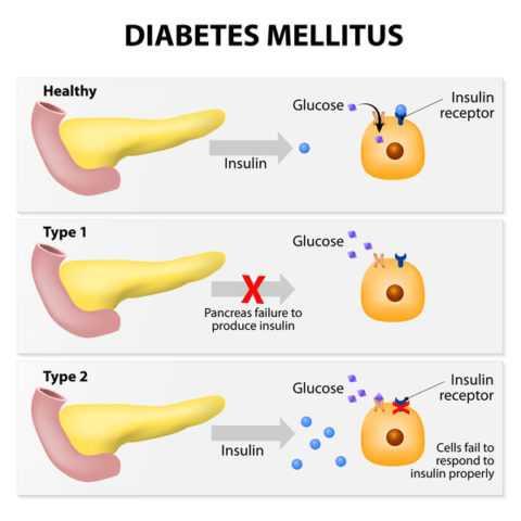 Патогенез развития двух основных видов сахарного диабета.