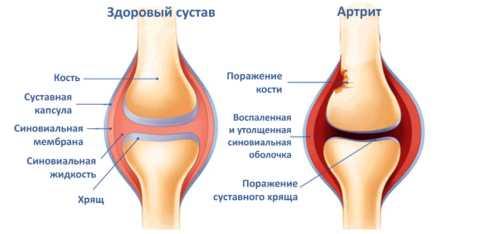 Патологические изменения в суставах