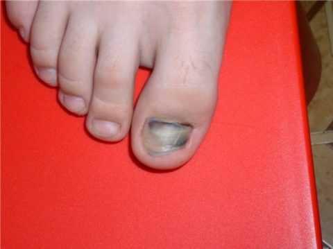 Почернение ногтя.