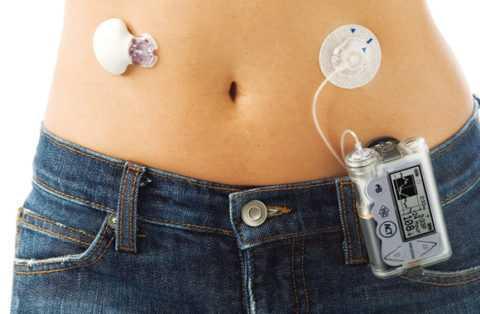 Подобные устройства позволяют избежать дискомфорта от постоянных инъекций.