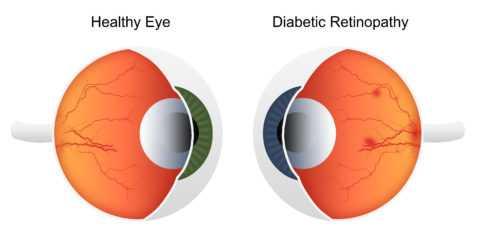 Поражение артериол глазного дна