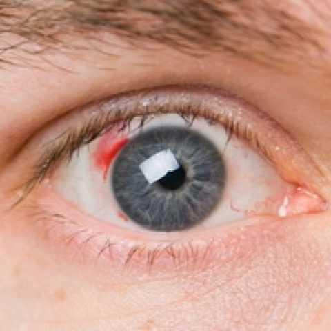 Поражение глазных сосудов