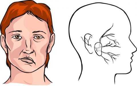 Последствие инсульта при заболевании