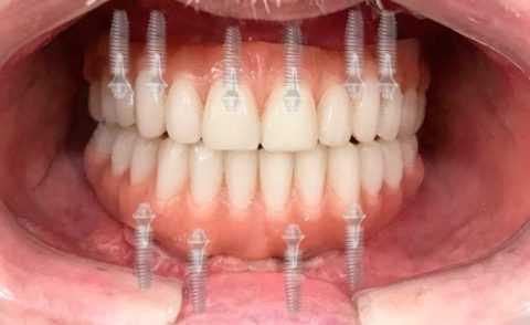 Потеря зубов у диабетика.