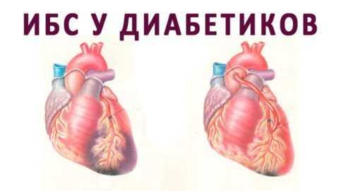 Повреждение сосудов и сердечной мышцы при СД - вторично
