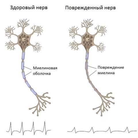 Поврежденная миелиновая оболочка нерва не позволяет рассеиваться импульсу