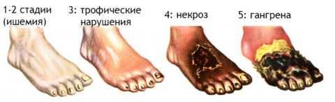 При развитии 5 стадии диабетической стопы требуется срочная ампутация конечности.