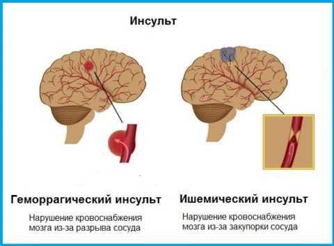 Причины геморрагического и ишемического инсульта
