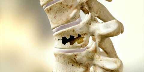Причины хрупкости кости.