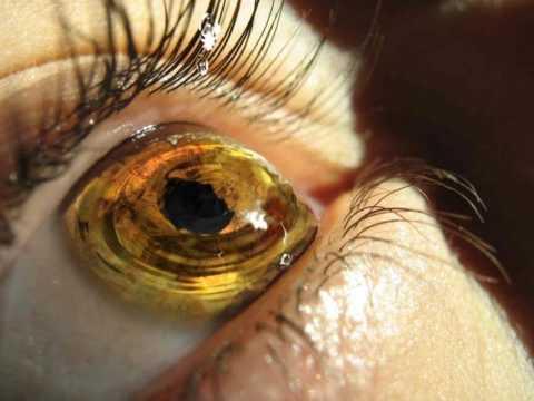Причины ухудшения зрения.