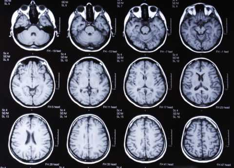 Признаки энцефалопатии на КТ