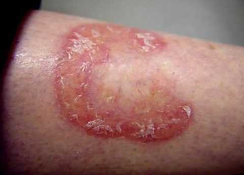 Прогрессивный липоидный некробиоз