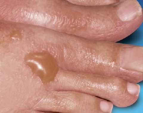Пузыри на коже при СД