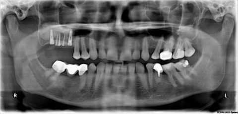Рентгенография.