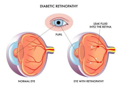 Ретинопатия характеризуется изменением структуры сосудов