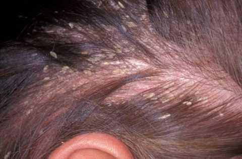 Шелушение и оголение кожи на голове