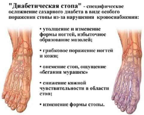 Синдром, объединяющий несколько признаков