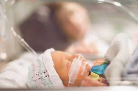 Синдром расстройства дыхания новорожденного.