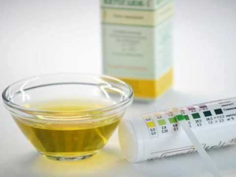 Содержание сахара в моче раздражает слизистую и провоцирует образование баланопостита.