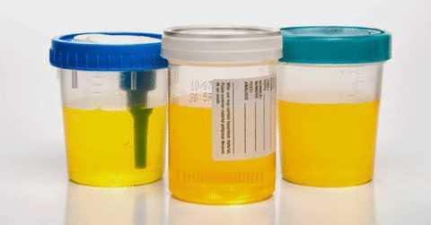 Содержание в моче кетоновых тел предполагает наличие сахарного диабета.