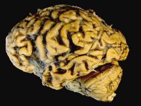 Сосудистая деменция головного мозга