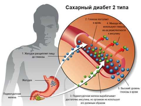 Современные препараты в лечении 2 типа диабета