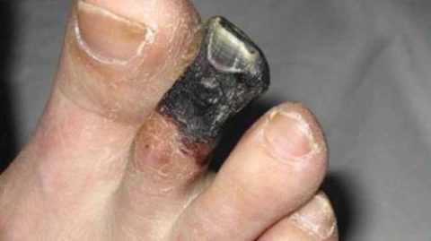 Сухая гангрена пальца стопы