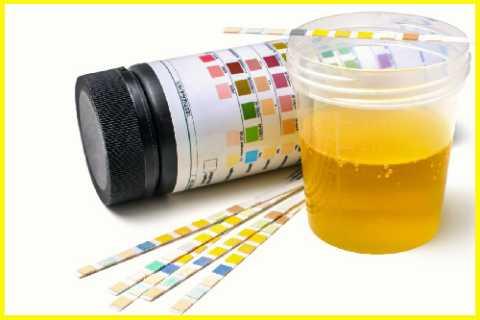 Тест-полоски помогут определить наличие сахара в моче, не выходя из дома