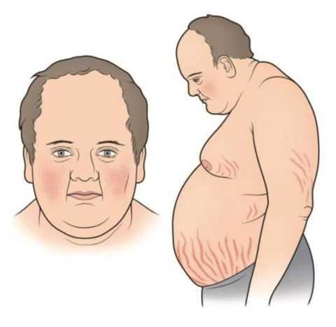 Типичный вид пациента с этим заболеванием